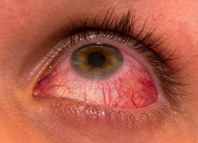 eye infections, pink eye, allergies