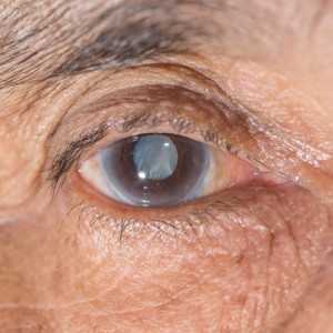 Bissell Eye Care, Cataract